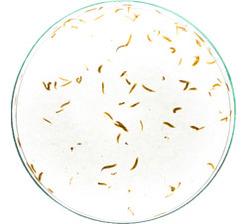 Flatworm_human_parasite