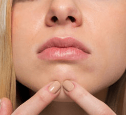Woman with acne on chin