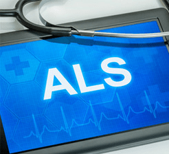 Als research tablet concept