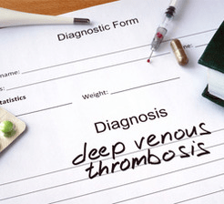 Deep venous thrombosis diagnosis