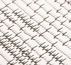 Atrial fibrillation heart chart
