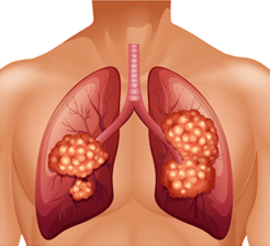 Lung cancer diagram