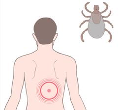 Lyme disease tick bite concept