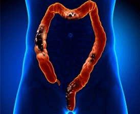 Colorectal_cancer_concept