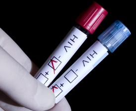 Hiv_vaccine_research