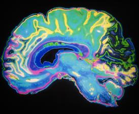 The_brain___false_memories