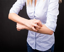Atopic dermatitis itching
