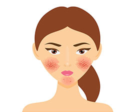 Recognizing rosacea signs
