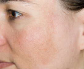 Melasma pregnancy skin condition