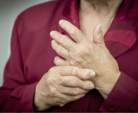 Older woman with rheumatoid arthritis